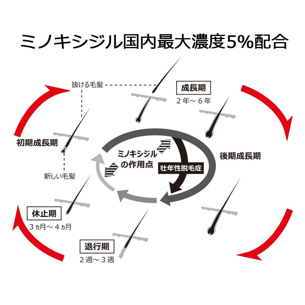 【第1類医薬品】ミノキシジルローション5%「JG」 60ml